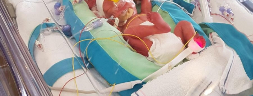 Te vroeg geboren baby foto in couveuse